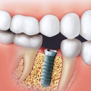 Implantat i kæbe