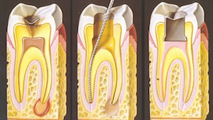 root-canal-treatment [fusion_builder_container hundred_percent=