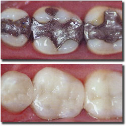 composite-fillings[fusion_builder_container hundred_percent=