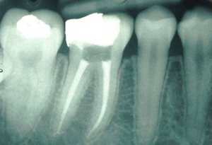 root_canal_treatment[1]